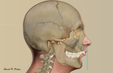 An illustration of patient with smaller lower jaw creating a discrepancy between the upper front teeth and lower front teeth. This patient's problem requires jaw surgery to correct the discrepancy. The blue line indicates where the lower jaw should line up.