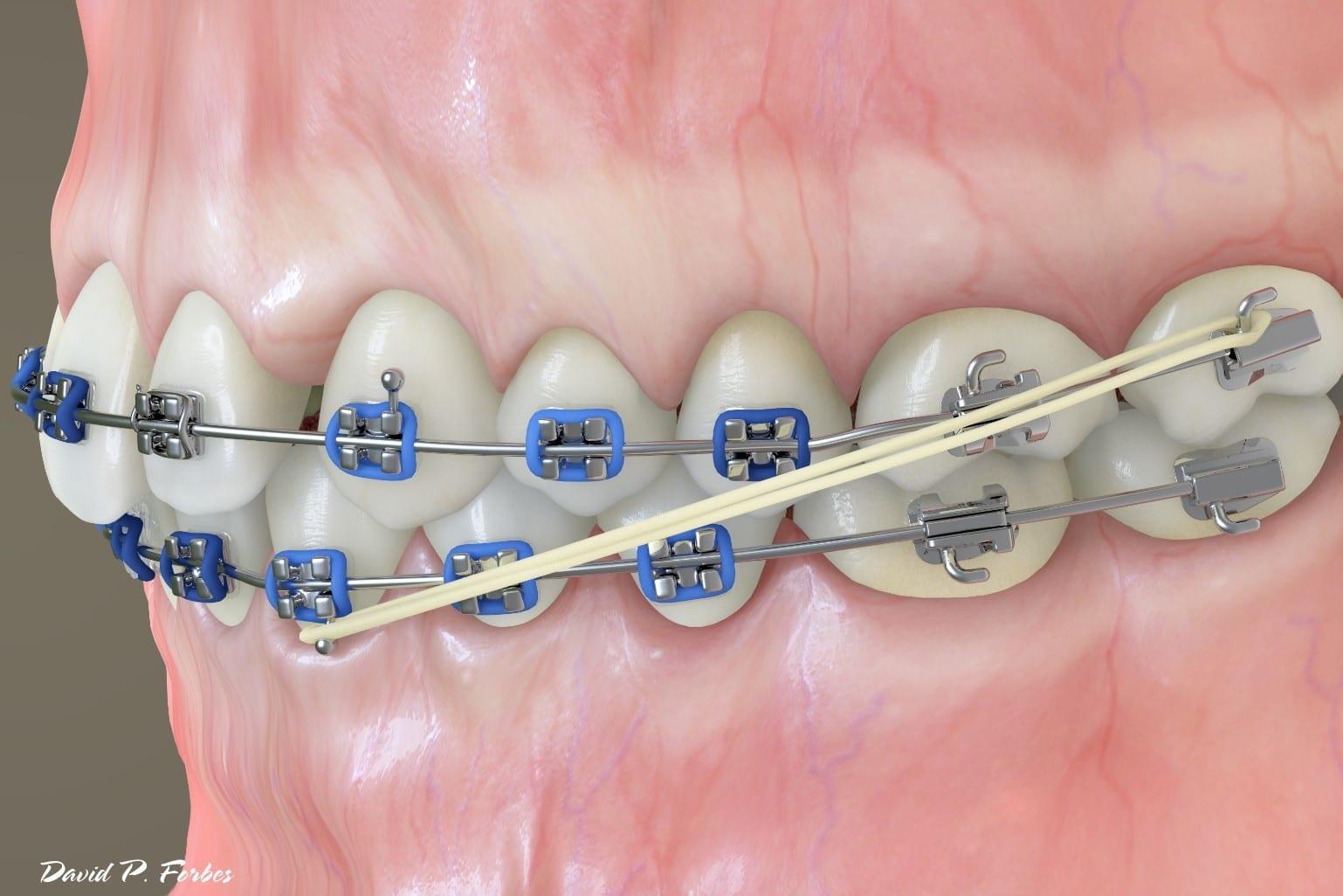 Treatment Auxillaries Elastics Rubber Bands Forbes